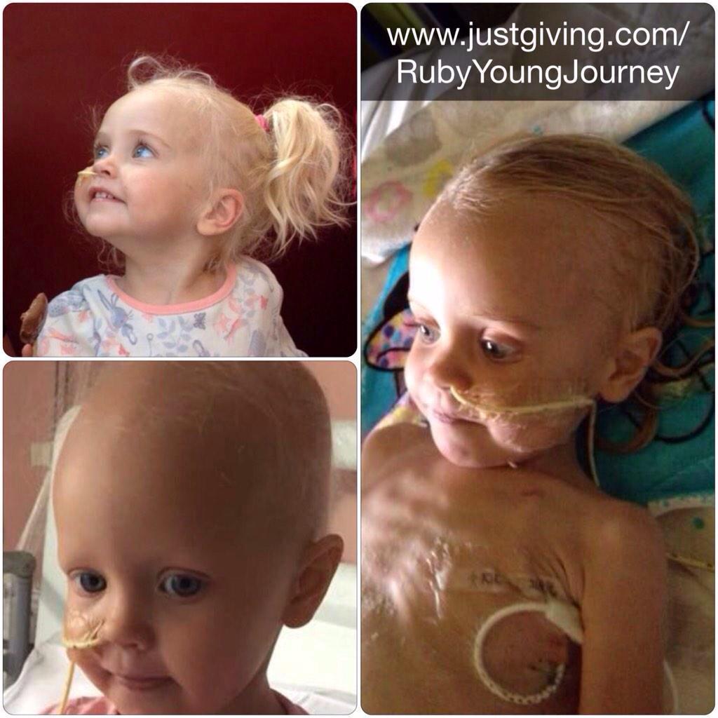 RT @chrisfinnegan82: @lemontwittor rubylaura has neuroblastoma rare  cancer. PLEASE RT & donate: tx RLYJ88 £2 to 70070 needs £500k http://t…