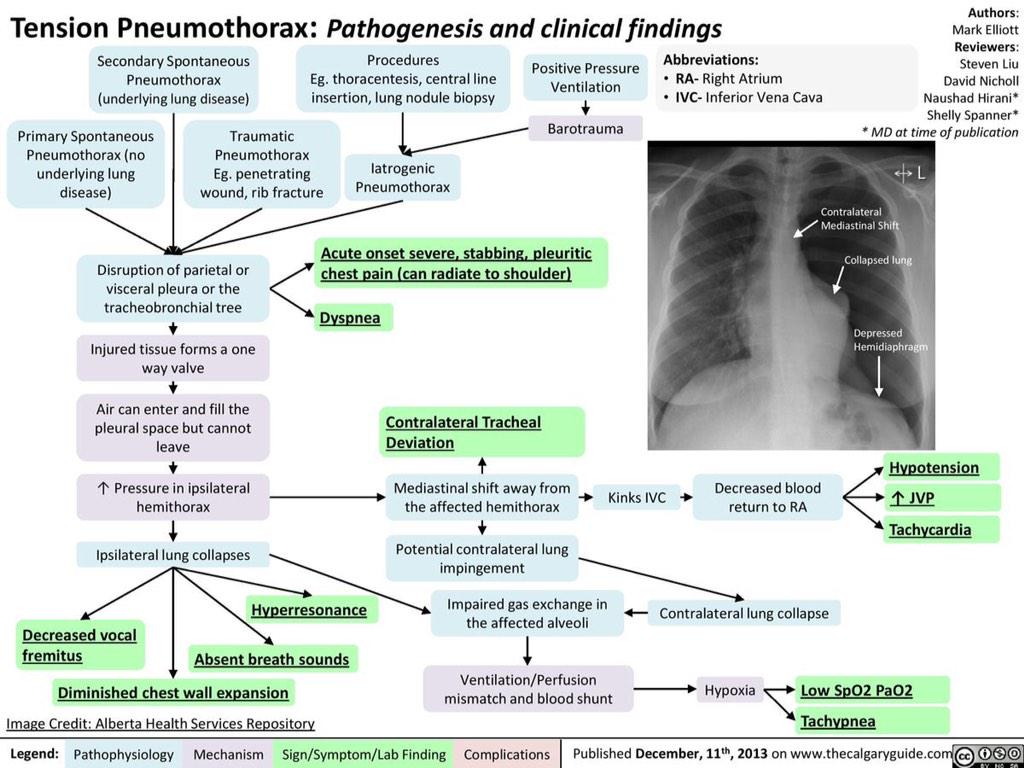 pneumothorax: mechanical ventilation and medicine net essay Basic physics related to mechanical ventilation in simple terms the lung-ventilator unit can be thought of as a tube with a balloon on the end with the tube initial steps are to check for ett blockage and ventilator malfunction other factors to consider are airway resistance, pneumothorax.