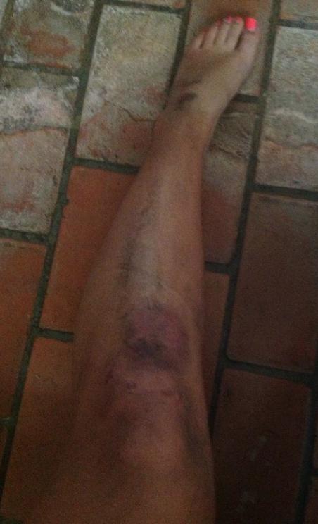 #nuestravoz Vean las lesiones de Daniela Mata http://pic.twitter.com/EmPzCLgW