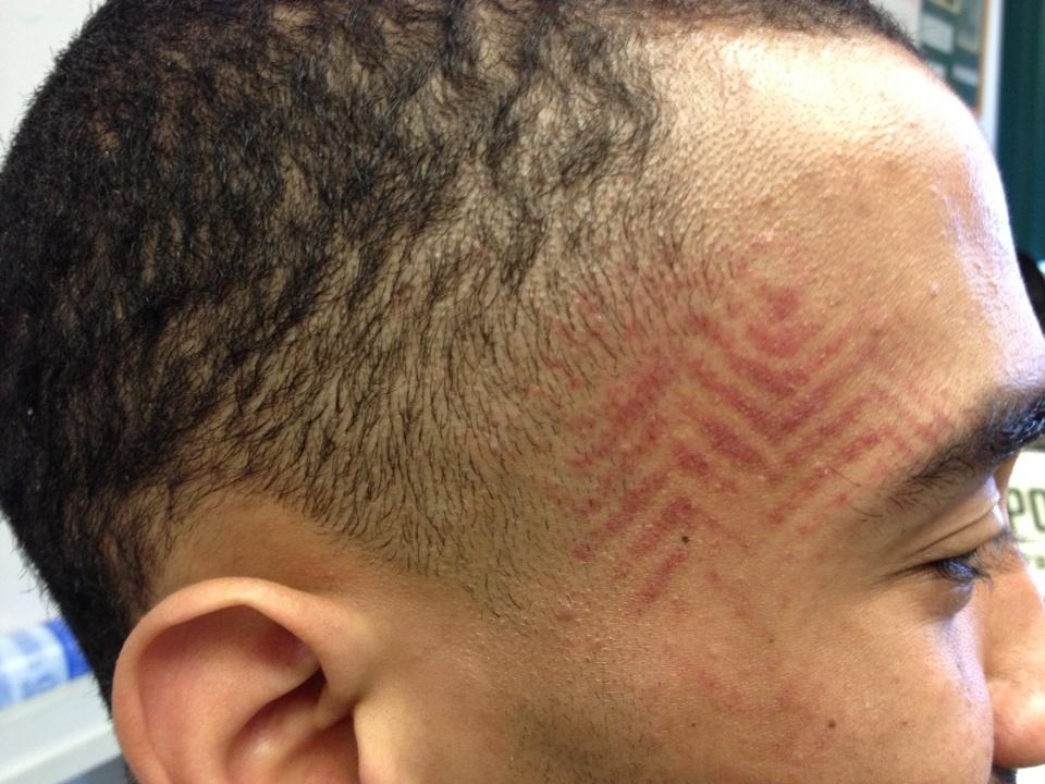 Cal-Poly guard Jamal Johnson has imprint of teammate's shoe after Reese Morgan stepped on him