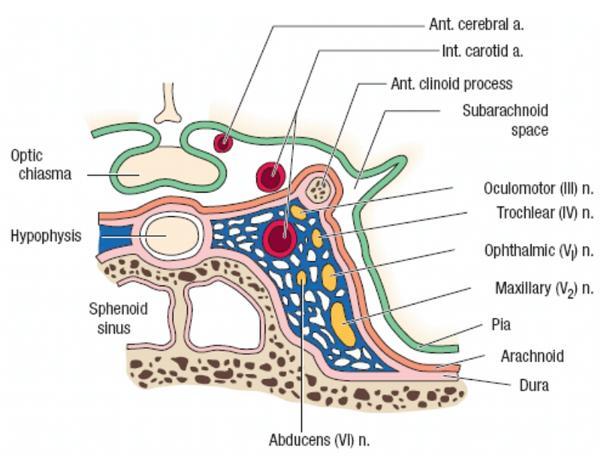 cellulitis wat is het