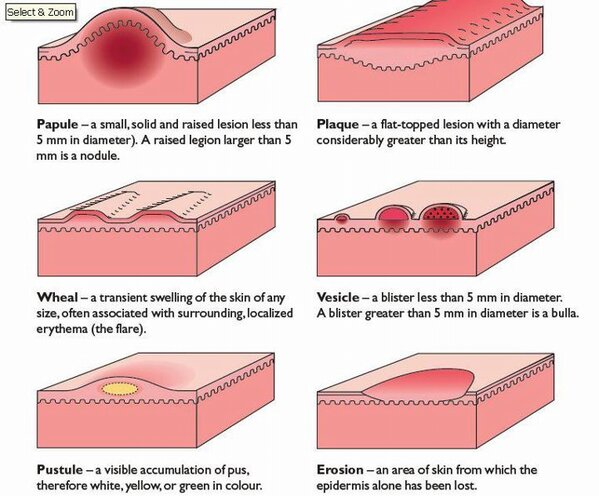 dermatological definition - pictures, photos diagram of papules