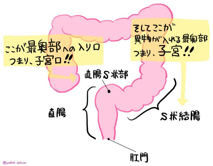 bl 結腸