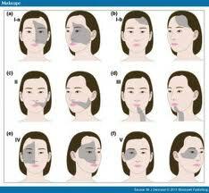 #7البهاق القطعي تظهربقع البهاق في جهة واحدة وتعتبر منطقة الوجه من أكثر المناطق إصابة وغالبا يستجيب لزراعة الخلايا http://pic.twitter.com/KkbhqJfi