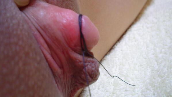 Pdf the suspensory ligament of the clitoris