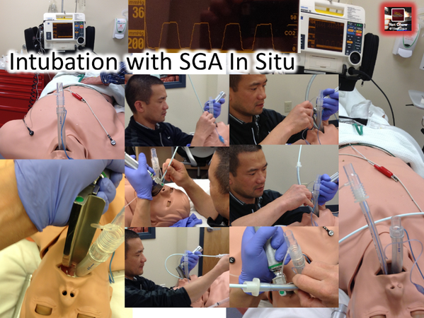 @jducanto @rfdsdoc Pics on Intubating with SGA In Situ pic.twitter.com/xsUFUmRf6w