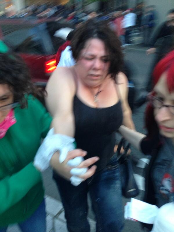 Reporter Hanna Scott pepper sprayed at Seattle May Day protest