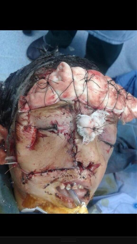 مجزرة بنياس بسوريا ،، قتل 264 من المدنين اغلبهم من النساء والاطفال  ( مشاهد بشعة ممنوع الدخول لمن لا يحب ذلك ) BJTQMaECEAErdFB
