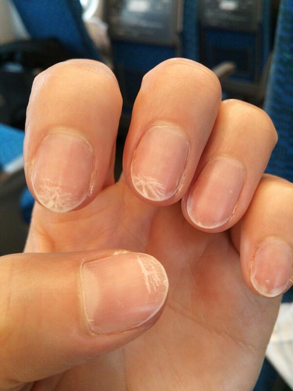 れいこ On Twitter 数日前にネイルオフしたら 爪に白い斑点が