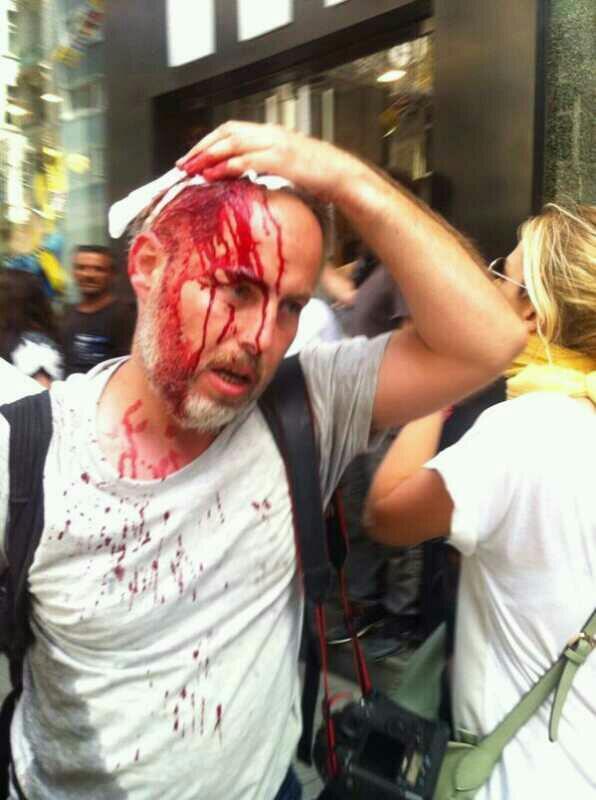 Osman Orsal ferido por um cartucho de gás lacrimogéneo.
