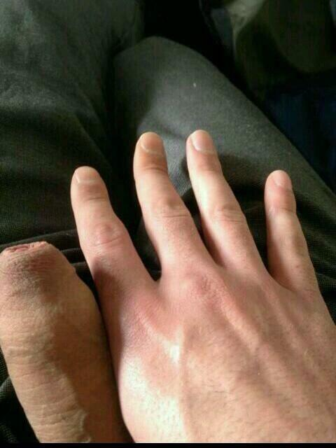 tigerlily on Twitter  u201c@charliejones95 shut my thumb in the kitchen door looks abit swollen //t.co/mK1Uf5q9mcu201d ???????  & tigerlily on Twitter: