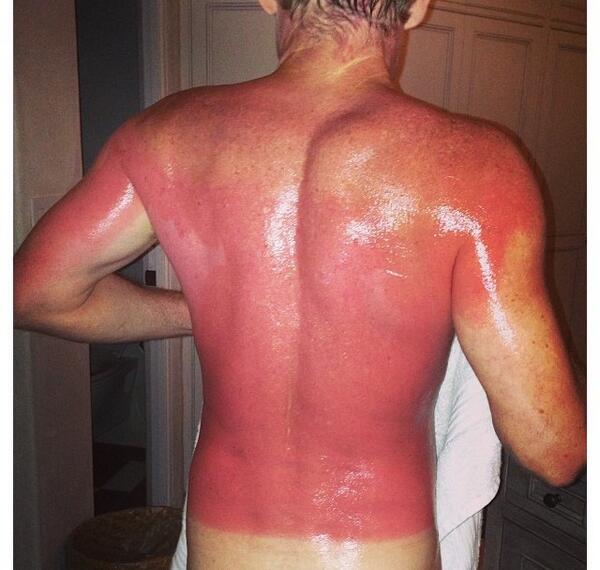 Bilderesultat for worst sunburn
