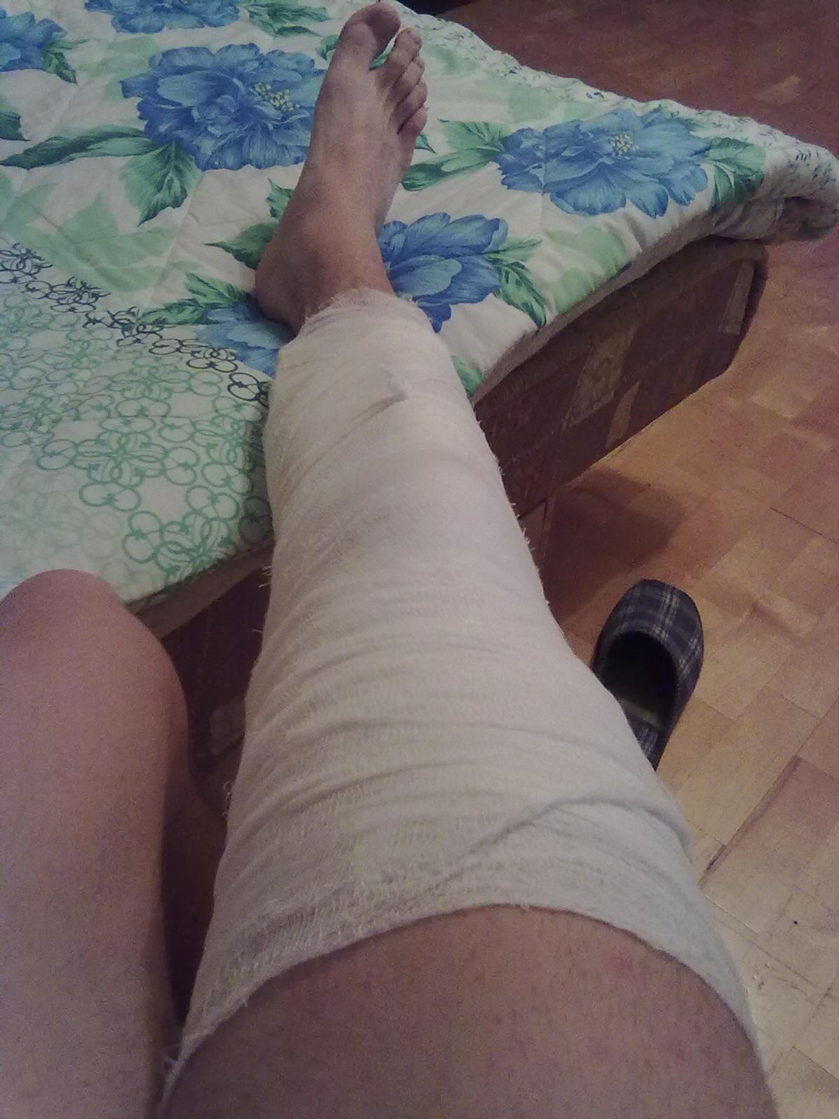 Неожиданно встал на людях ноги кость — 8