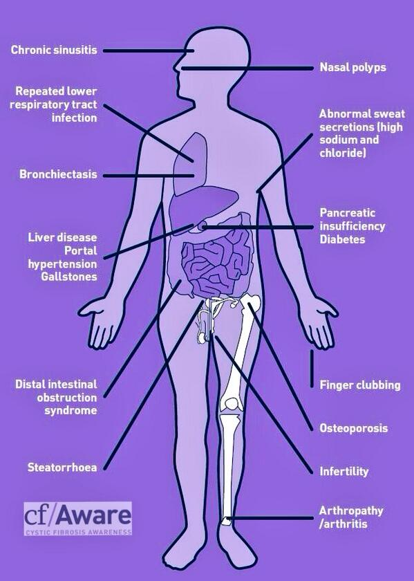 Cfaware On Twitter How Does Cystic Fibrosis Affect The Body