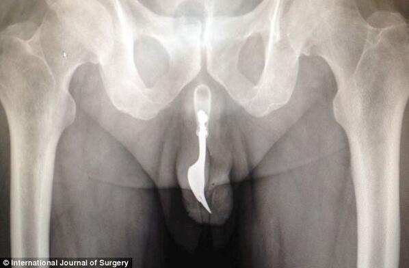 Image result for gun up butt xray