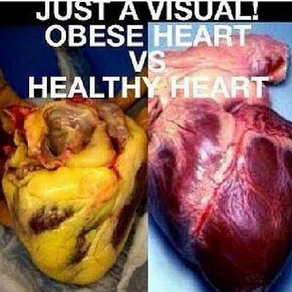 "Life Pro Fitness on Twitter: ""Obese heart vs healthy heart ..."