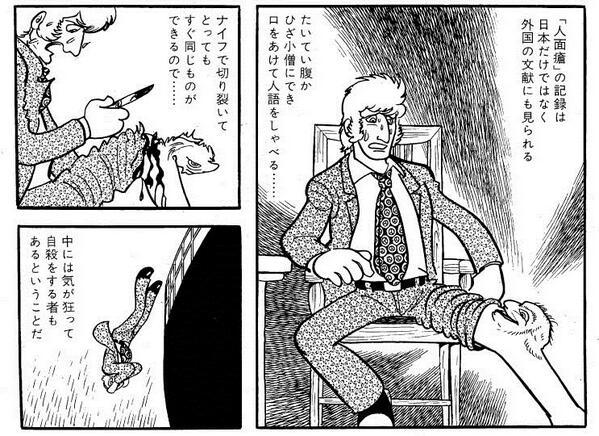 ブラック ジャック 人 面 瘡 ブラック・ジャック (ぶらっくじゃっく)とは【ピクシブ百科事典】