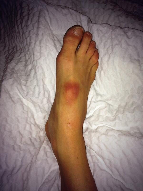 jenna johnson on twitter hahahaha disregard how scary my feet look