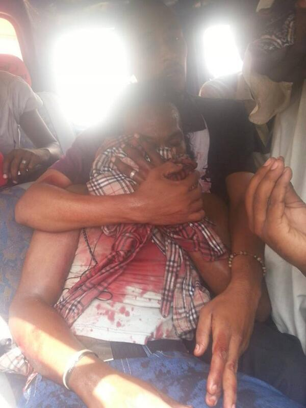 At least 22 protesters killed in #SudanRevolts unrest so far, reports @BBCArabic. This person was shot in the eye: http://twitter.com/alzamzame/status/382801691151568896/photo/1