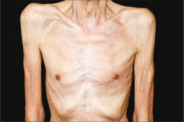 perdida de masa muscular y peso consecuencias