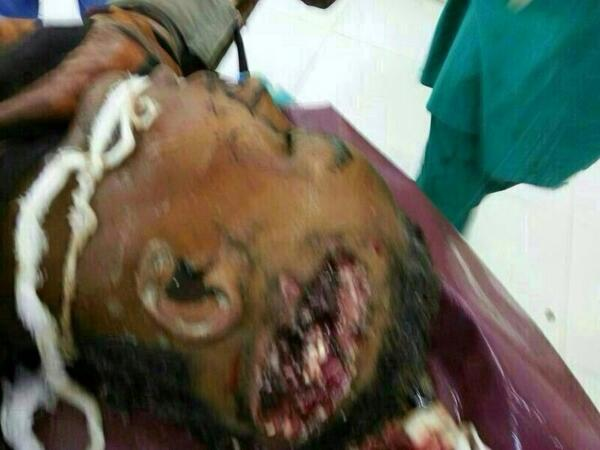 Very graphic photo of another victim #ابينا  #Sudan http://twitter.com/Usiful_ME/status/383231330261020673/photo/1
