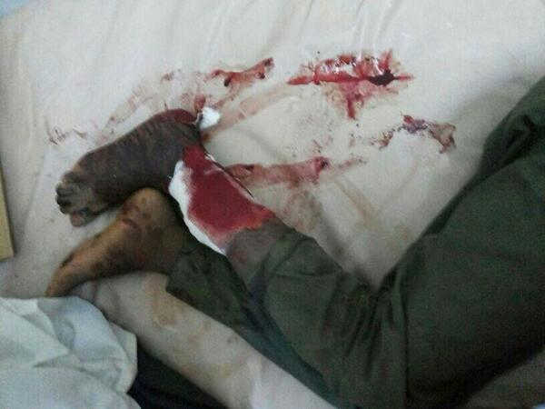 More graphic photos of victims #Sudan #ابينا  3 http://twitter.com/Usiful_ME/status/383239461254856704/photo/1