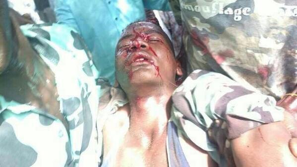 More casualties #sudan #ابينا 5 http://twitter.com/Usiful_ME/status/383325189619990528/photo/1