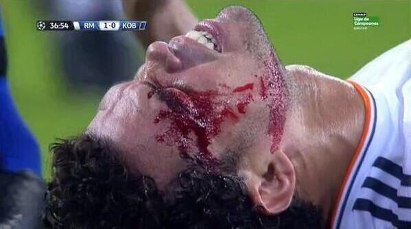 BVmHCQDIYAAuyON Horrific! Following a clash of heads, Real Madrids Pepe has to get his head stapled back together