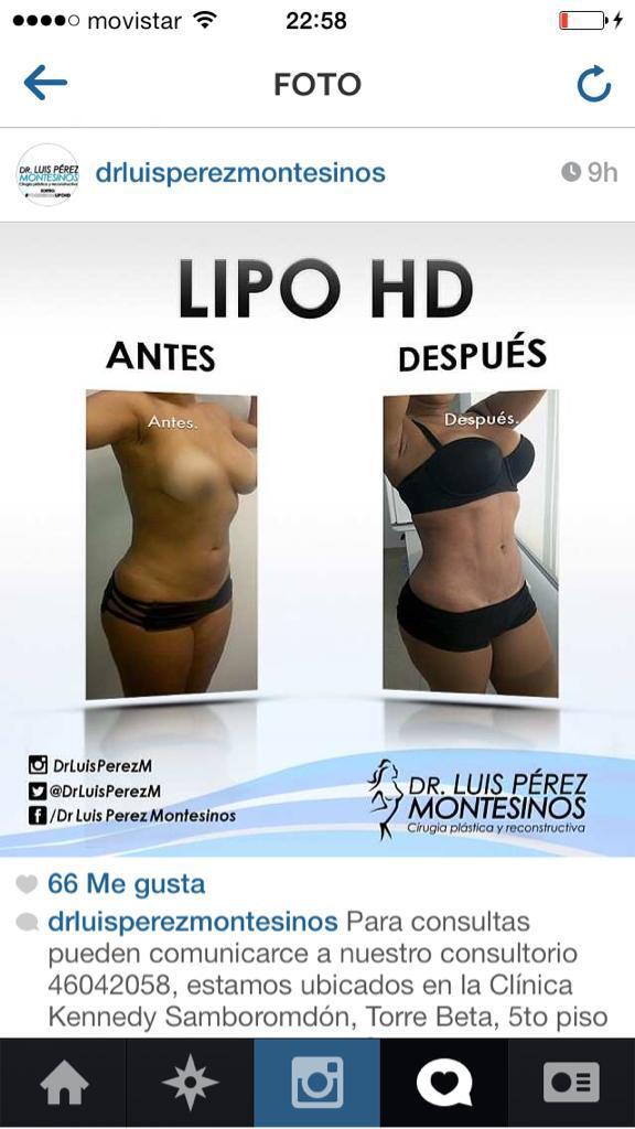 Dr. Luis Perez M on Twitter: \