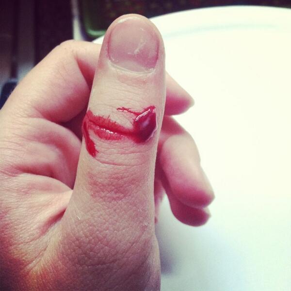 Приснилось что мне отрубили палец