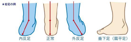 「足部変形」の画像検索結果
