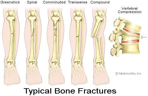 "las resilience team on twitter: ""a greenstick fracture is a, Human Body"