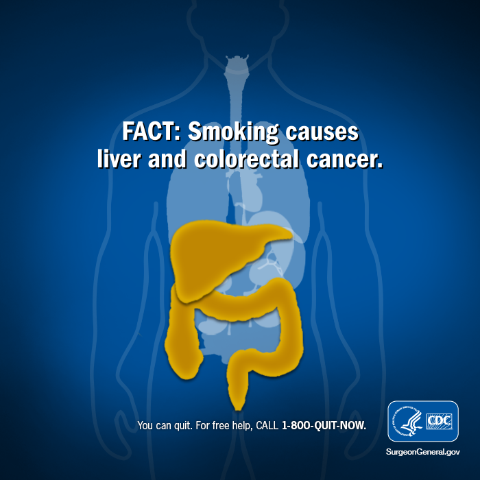 Cdc Tobacco Free On Twitter Support Those Affected By Colon Cancer By Participating In Dressinblueday Quit Smoking Reduce Your Risk Http T Co Wgzktx7xwc