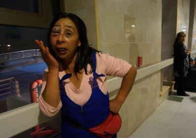 Mujer agredida por su marido se retiró del hospital de #PuertoMontt por no recibir atención http://t.co/ba72gVapgB http://t.co/3TEGinK4wN