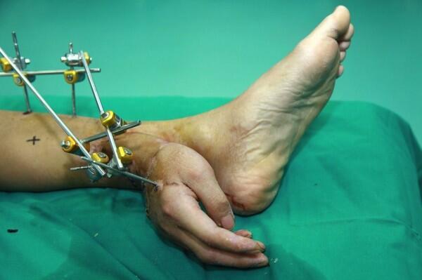 Médicos salvam mão amputada implantando-a no tornozelo. http://t.co/FSfxoOUq4h http://t.co/Z8os9R1gAf