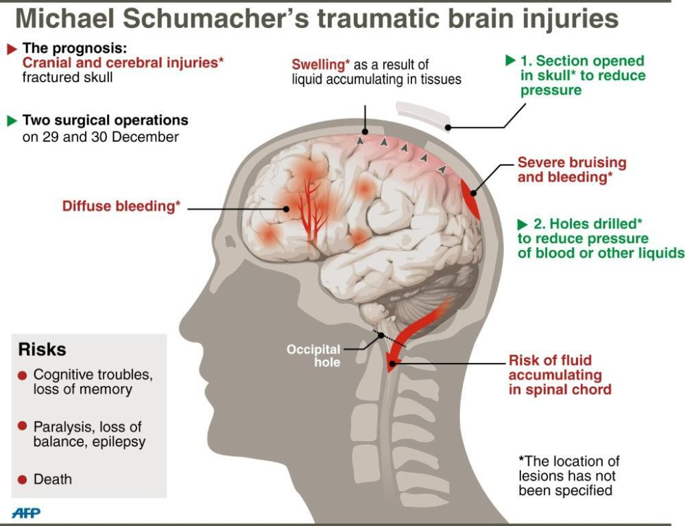 Types and Levels of Brain Injury