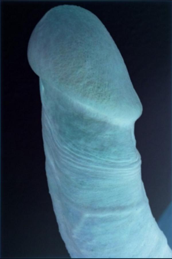 foto de una erección del pene