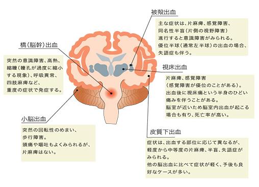 出血 は 脳幹 と