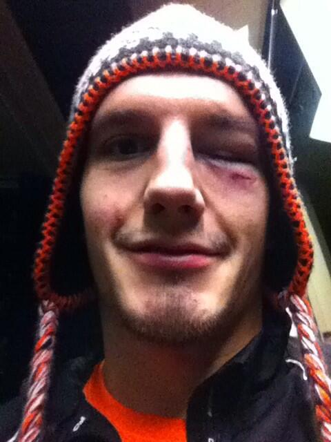Losing my hair and my vision..... Next will be my mind. #2points #komets http://t.co/gb53rg7MKm
