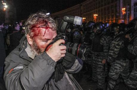 Wounded photographer Gleb Garanich (Reuters), injured by riot police continues to cover #Ukraine protests in #Kiev http://t.co/1s7hW6bzKM