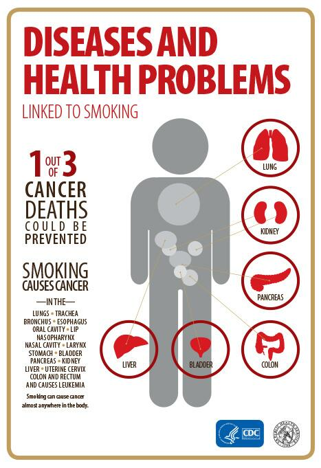 If no one in the US smoked, we could prevent 1 out of every 3 cancer deaths. RT to educate others. #SGR50 http://t.co/7AIuhb0bJn
