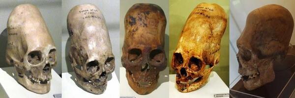 ペルー発掘の古代の細長頭蓋骨を、人類学国際チームのDNA鑑定の結果「人間ではない異なる種か人間とエイリアンのDNAミックス」であるとの結論に至りました。聖書上のネフィリムか。 http://t.co/uml01sOE6L http://t.co/7A3LrheAfd