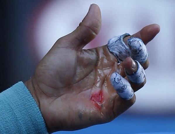 Miren como quedó la mano de Rafael Nadal luego del partido con Grigor Dimitrov: http://t.co/eyihCYt9nN