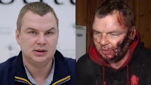 Thumbnail for EuroMaidan: Folter soll den Willen brechen