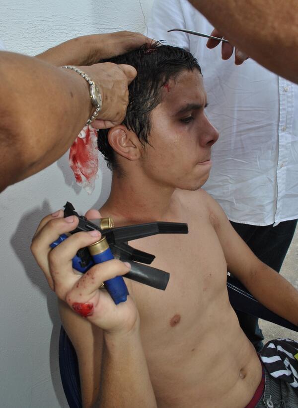 (FOTO) César Nieto (20) herido de culatazo de escopeta propinado por GN Urb Altamira #Palavecino http://t.co/J7QpFrAba3 via @LuisPerozoPadua