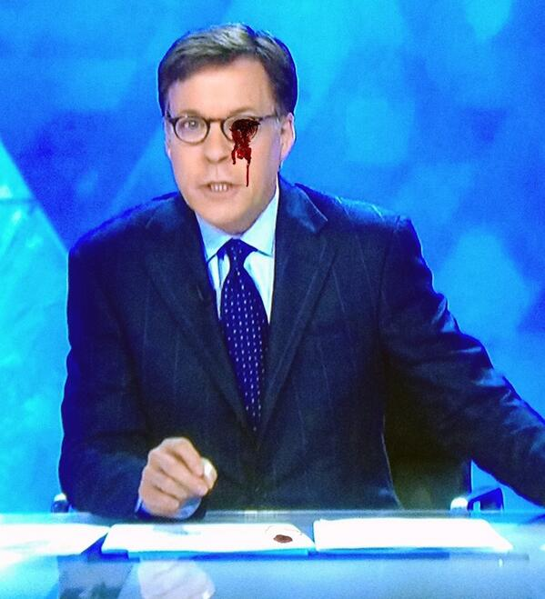 Well it finally happened, Costas' damn eye fell out... http://t.co/yx1tC1tlIT