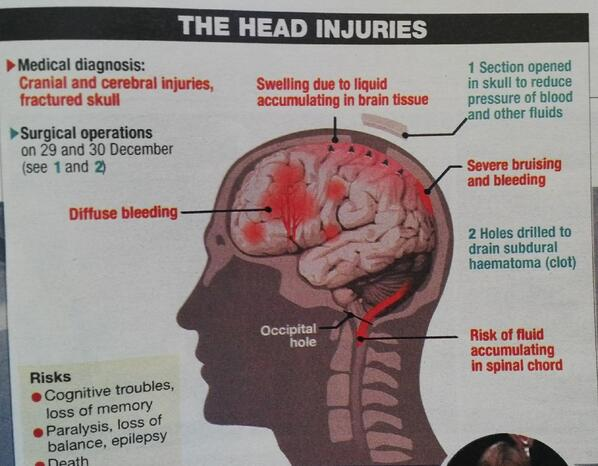 So very sad! Michael Schumacher's head injuries! 2 brain ops later and still in an induced coma since 29 Dec! http://t.co/i69hjhzxzs