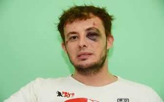 Brutal golpiza a un joven por ser homosexual.Damián Marsero fue agredido Xefectivos de la provincia de La Pampa. http://t.co/khR9bD1Oey