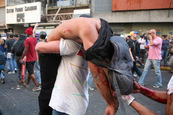 Amnistía Internacional lanzó una Acción Urgente mundial por Venezuela http://t.co/qlSPdE1uVP http://t.co/Vx7vD0ytub