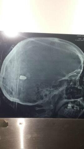 Radiografía de Génesis. Milagrosamente está estable http://t.co/GFkbvC2oSq